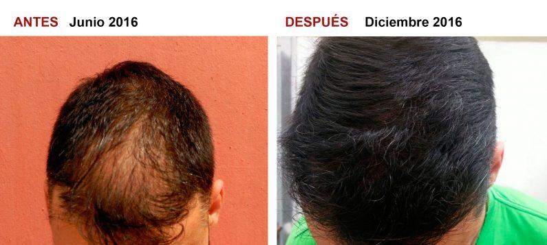 cabello, alopecia, injerto capilar