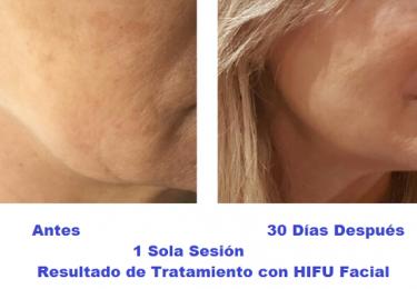 hifu, elasticidad de la piel, mediestetic, colageno