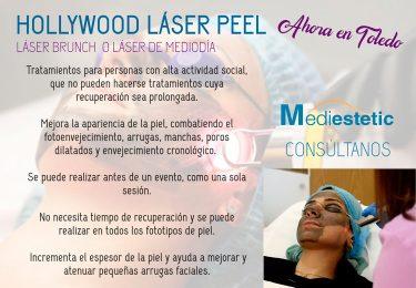 Hollywood Laser